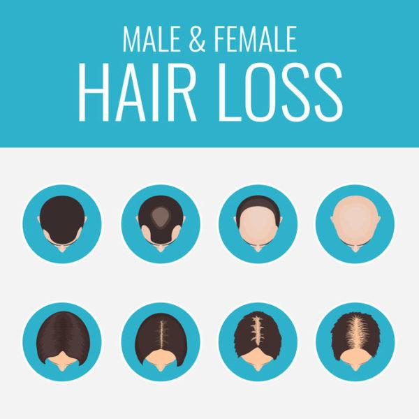 Male Or Female Pattern Baldness