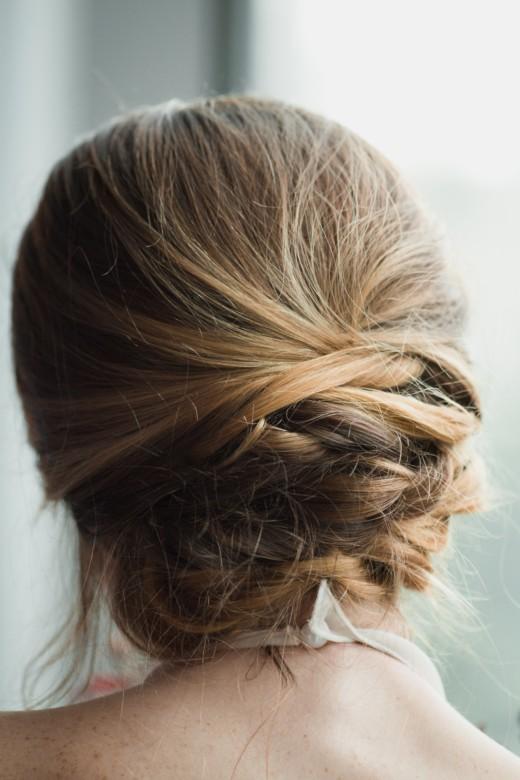 Telogen Effluvium Condition and Hair Growth