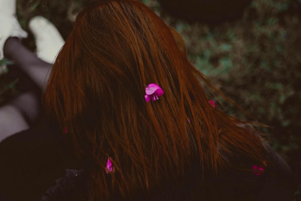 Anemia Cause Hair Loss